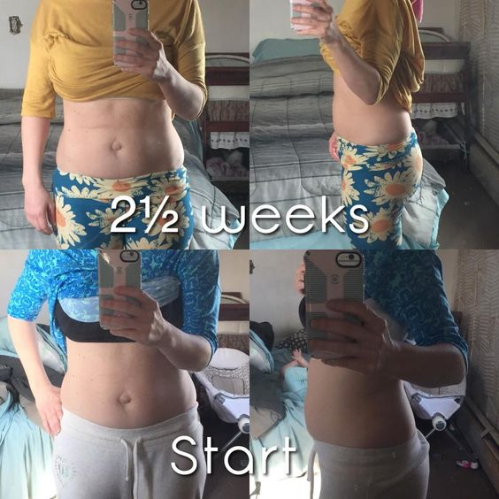 The Diastasis Recti Recovery System results with CarrieFit