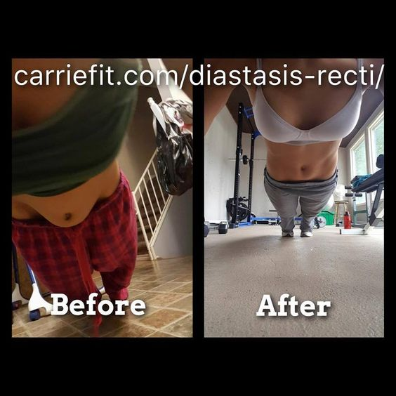 The Diastasis Recti Recovery System by CarrieFit results